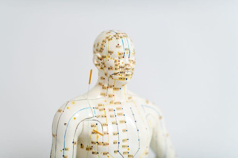 dr-gasse_praxis_akupunktur_figur_dsc_5960