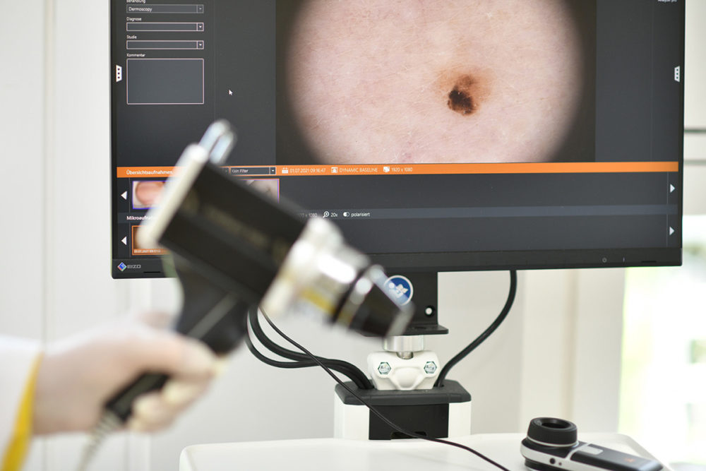 dr-gasse_praxis_dermatologie_laser_dsc_6450-bearbeitet
